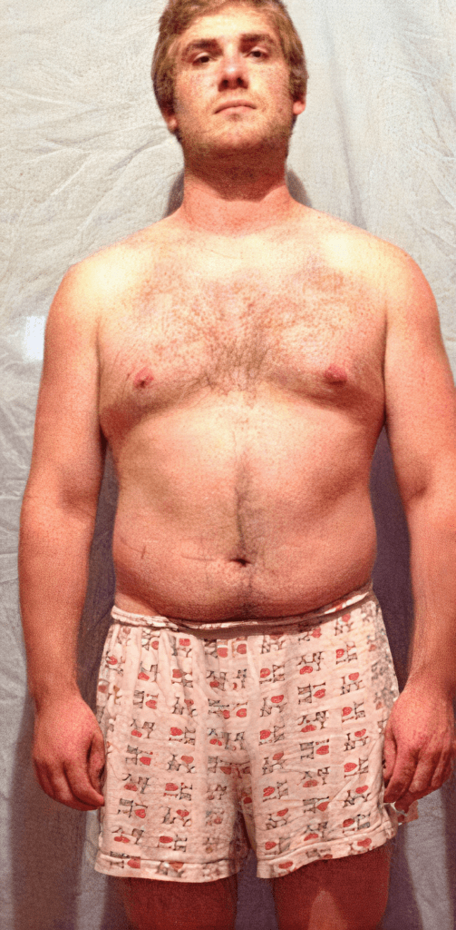 athlete belly fat before using anavar steroid