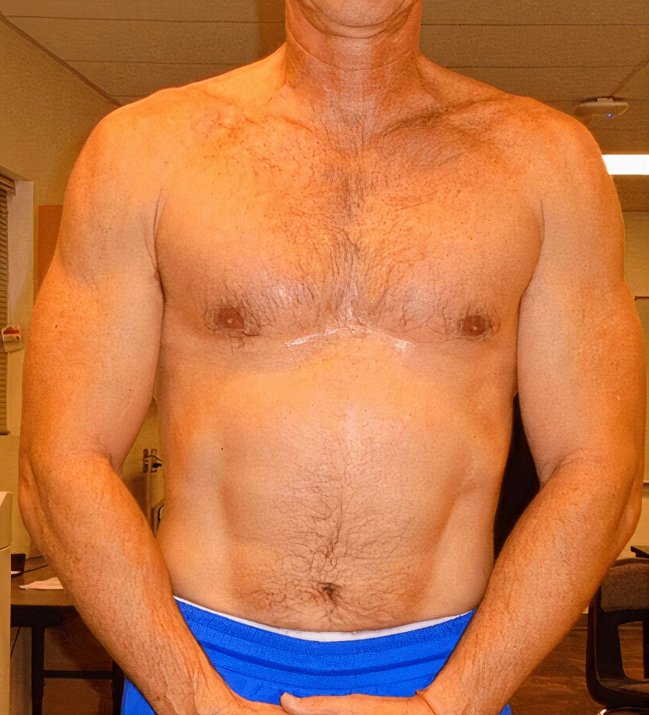 man after testosterone steroid for weight loss